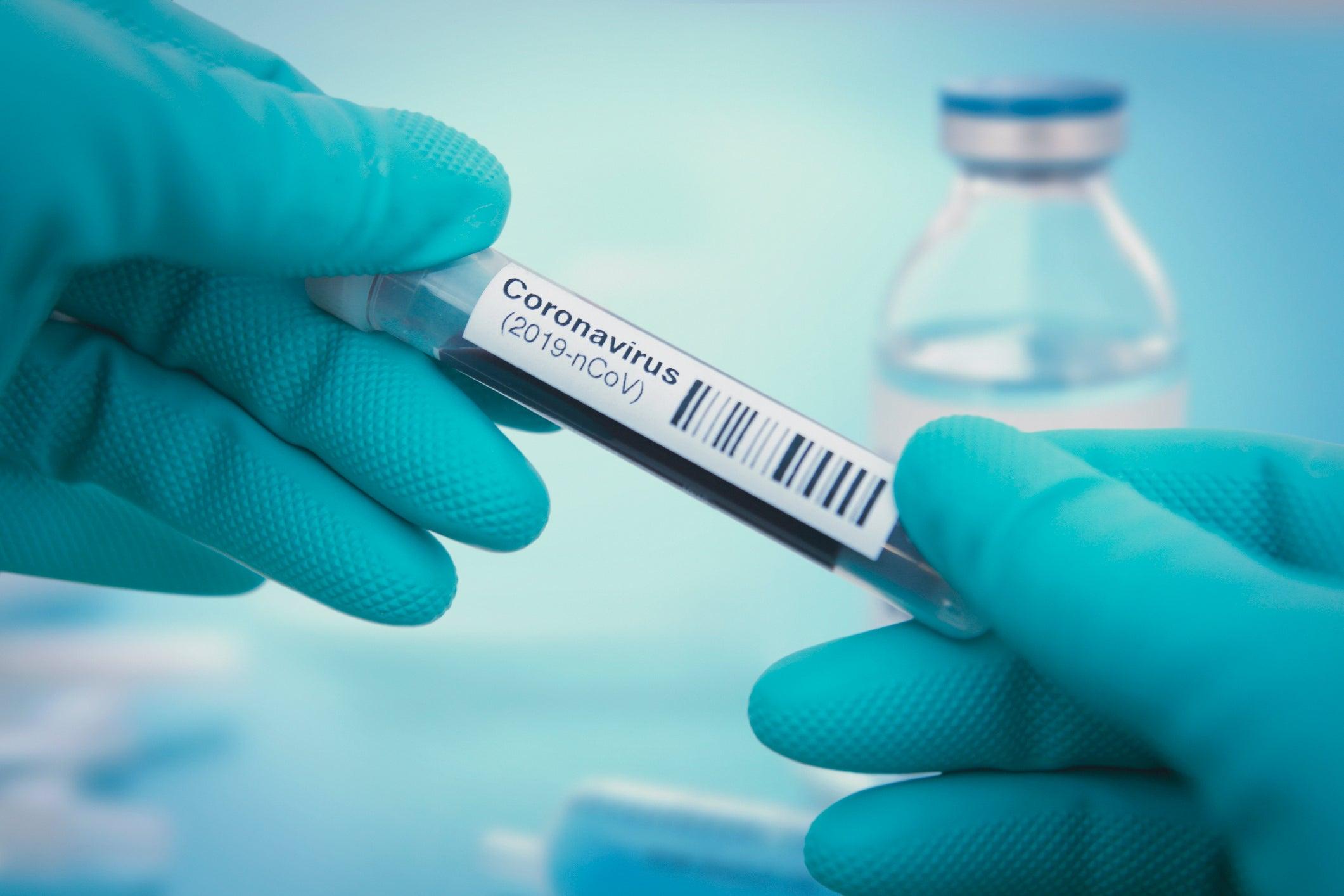 pharmaceuticals inovio investors covid vaccine